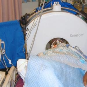 Мобильный компьютерный томограф CereTom